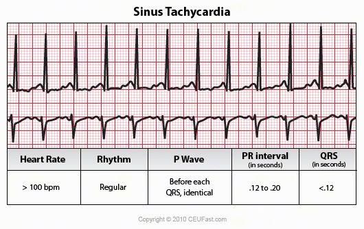Cardizem Dosage For Tachycardia