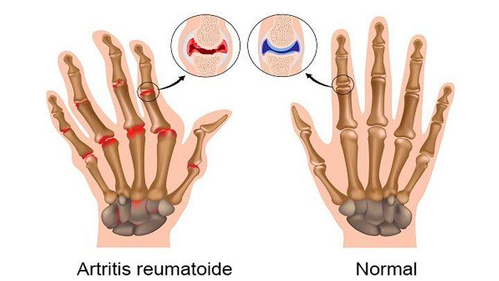 Pomada de jengibre para curar de forma inmediata la artritis http://www.bellezaz.com/pomada-de-jengibre-para-curar-de-forma-inmediata-la-artritis/