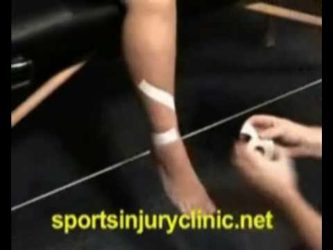 Taping technique for shin splints