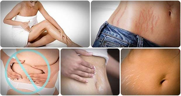 Les vergetures sont des lignes visibles sur la surface de la peau, avec une teinte de couleur. Les vergetures se trouvent principalement sur le ventre, mais peuvent également se produire sur les cuisses, les bras, les fesses et les seins. Parfois, les vergetures peuvent couvrir de grandes zones du corps. Alors que la grossesse est …