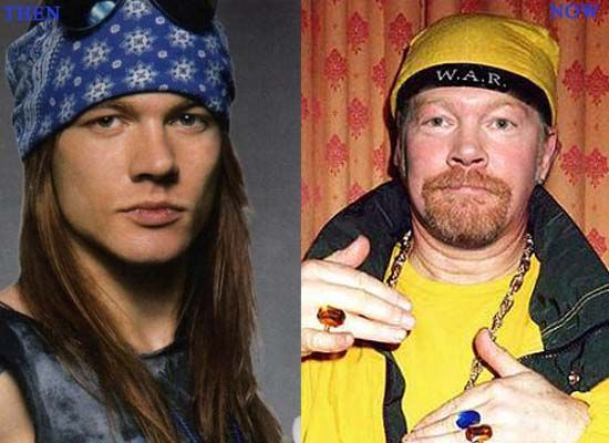 Axl Rose Plastic Surgery Photo Before and After – www.celeb-surgery…