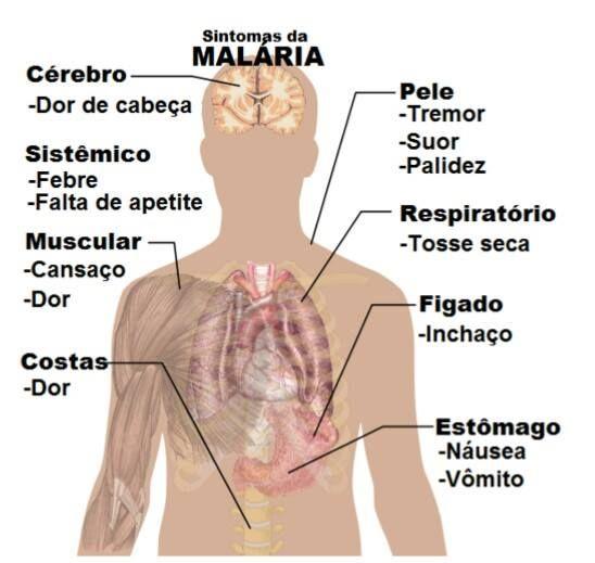 Sintoma de malária 10419545_417330015115007_3283733728660239283_n.jpg (548×519)