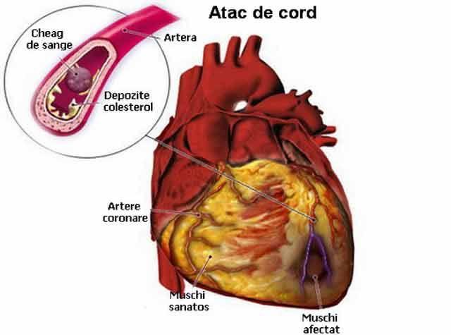 Cum poți salva viața unei persoane care a suferit un atac de cord în decurs de 60 de secunde - Secretele.com