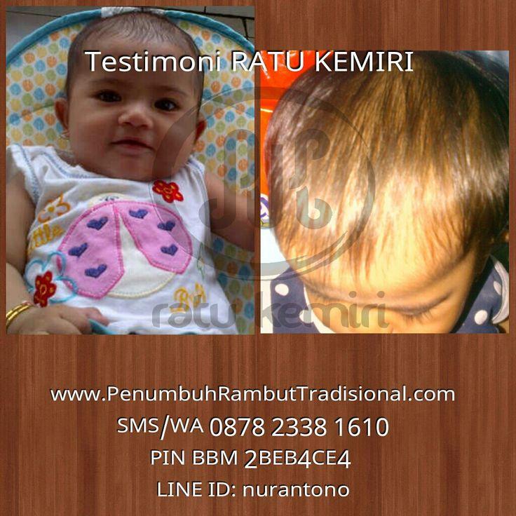 Jual obat penyubur rambut bayi Ratu Kemiri. WA 0878 2338 1610, BBM 2BEB4CE4. Alami, herbal dan berkhasiat.