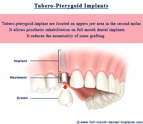 #Tubero-pterygoid implants represent very great alternatives in zygomatic implants or sinus lift. The Patients who has less bone in their upper jaw are a good candidate for pterygoid implants. http://full-mouth-dental-implants.com/cost-of-upper-dentures.php