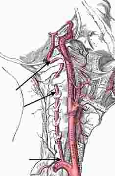 diagram of vertebral fracture best 25+ vertebral artery ideas on pinterest | carotid ... vertebral vein diagram