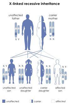 Duchenne muscular dystrophy - Wikipedia, the free encyclopedia
