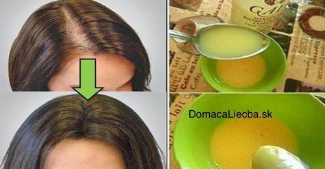 Trápi vás vypadávanie, pomalý rast alebo rednutie vlasov? Namiesto drahých prípravkov zobchodu na rast vlasov skúste tento domáci recept!