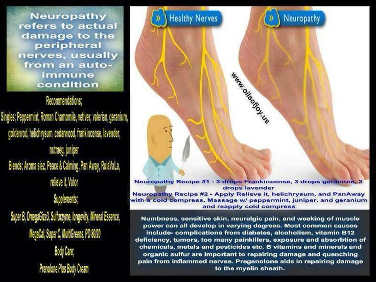 1000 Images About Essential Oils Neuropathy On Pinterest