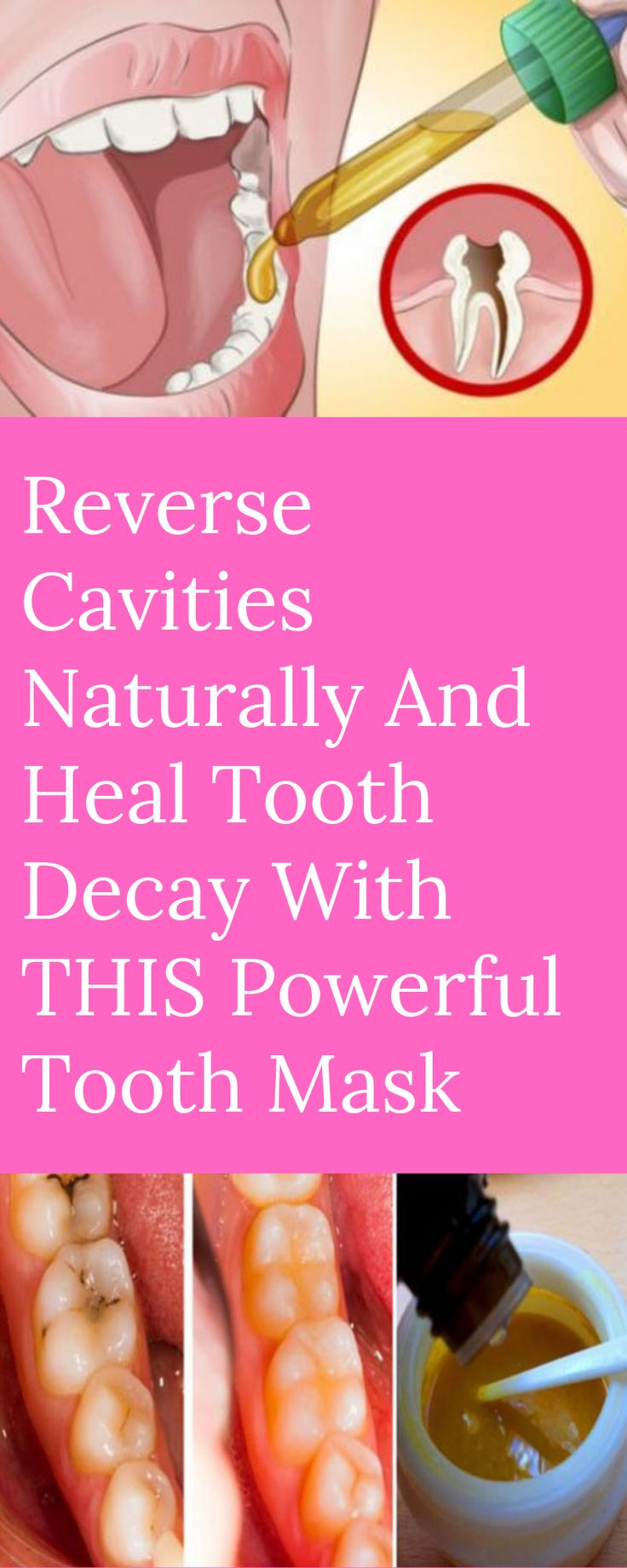 Reverse Cavities Naturally And Heal Tooth Decay With THIS