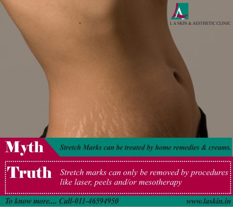 #Myth- Stretch Marks can be treated by home remedies and creams. Truth - Stretch marks can only be removed by procedures like laser, peels and/or mesotherapy. Book an appointment! Now!   #StretchMarks #StretchMarkRemoval #Dermatology #SkinCare #LASkin