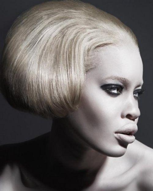 Diandra Forrest albino African