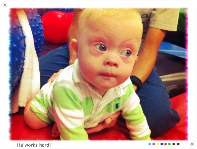 27 Best Developmental Downs Syndrome Images On Pinterest