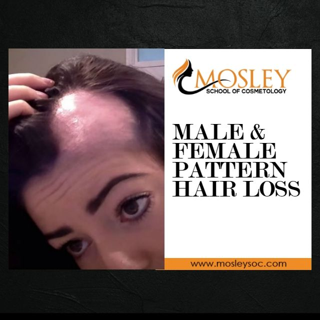 Root cause of hair loss
