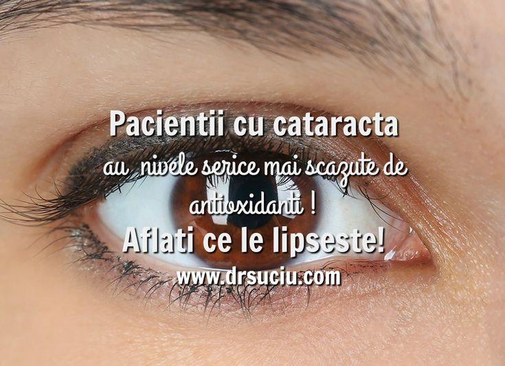 Lipsa de antioxidanti in caz de cataracta - drsuciu