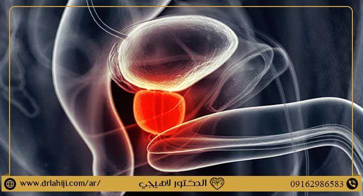 نشریات و مقالات عده طبعت حول فتک سرطان البروستاتا