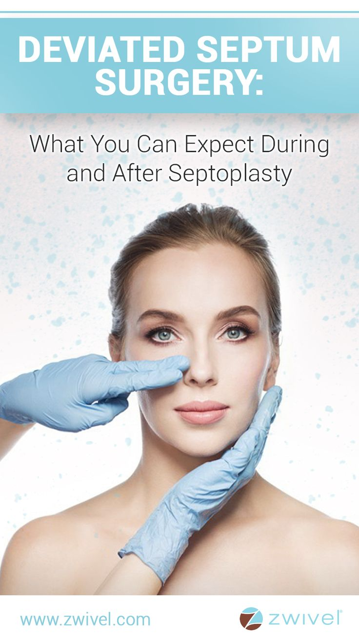 Interestingly, studies show that approximately 80 percent of the population has a deviated nasal septum, however, not all people with the condition experience side effects that warrant surgery. Furthermore, not everyone with difficulty breathing and nasal swelling is a good candidate for septoplasty. Other conditions, such as allergies or injury, can also affect the nasal passages and limit airflow.