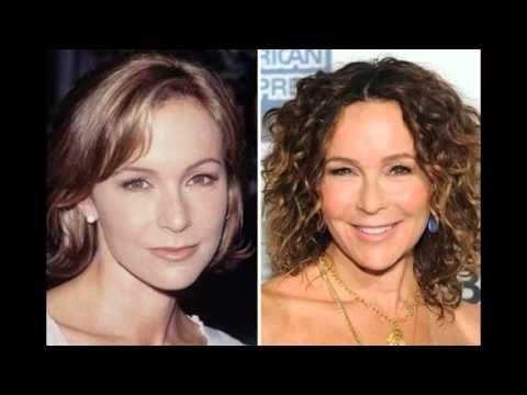 Jennifer Grey Plastic Surgery Mishap