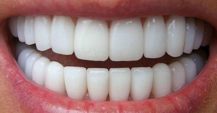 Receita de clareamento dental caseiro que funciona mesmo