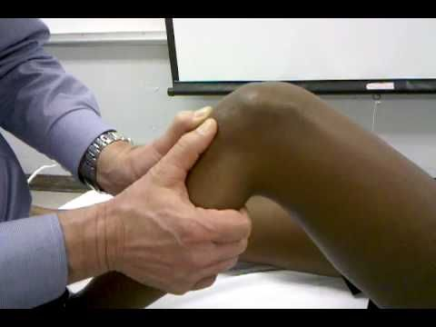 Anterior and Posterior Drawer Tests - YouTube >> Ant Drawer, Positive = ant displacement (ACL rupture) / False Positive = PCL rupture / False Negative = tight hamstrings