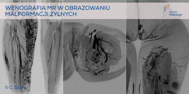 Klinika Flebologii oferuje diagnostykę i małoinwazyjne leczenie malformacji żylnych