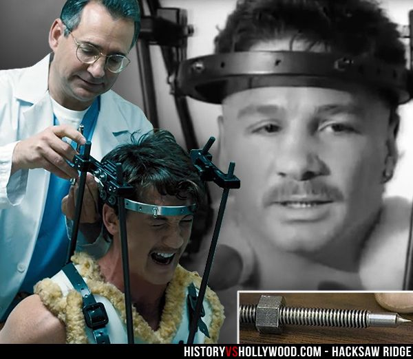 Miles Teller getting the metal Halo neck brace removed in the Bleed for This movie. Vinny Pazienza with the Halo on in real life. See pics of the real people behind the movie: http://www.historyvshollywood.com/reelfaces/bleed-for-this/