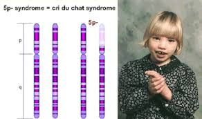 Imagini pentru cri du chat syndrome