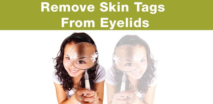 You may be wondering exactly what is eyelid skin tag removal and, to cut it short, it is the process of removing skin tags that have unfortunately found a home on a person's eyelid. As well as looking incredibly intimidating and painful, skin tags that grow on and around the eye can sometimes impair sight, which is a massive problem.
