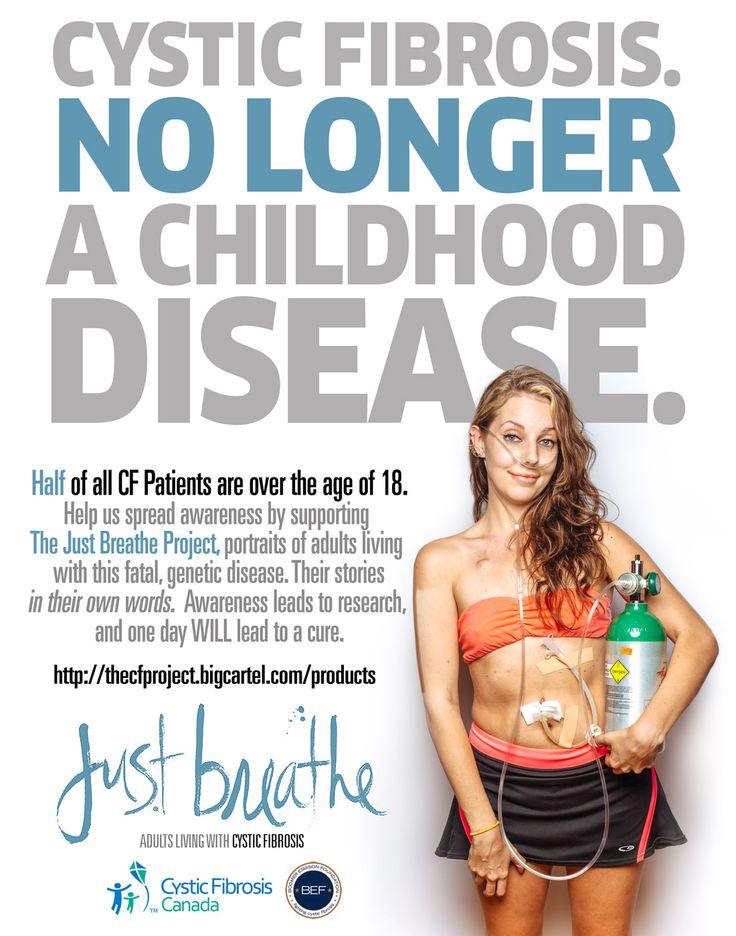 Cystic fibrosis adult