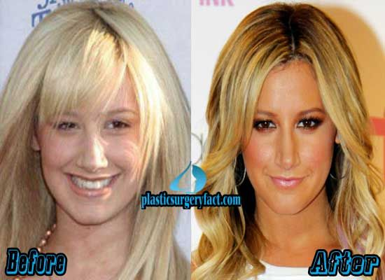 Did Ashley Tisdale Get A Nose Job | http://plasticsurgeryfact.com/ashley-tisdale-nose-job-before-and-after/
