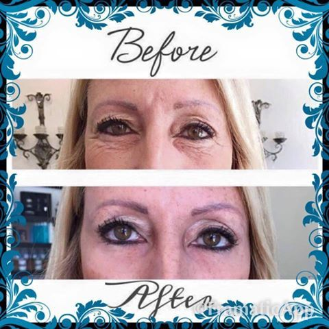 The results are undeniable!  Look 10 years younger in less than 2 minutes with Instantly Ageless by Jeunesse!    Instantly Ageless is loaded with the powerful, fast acting peptide, Argireline.  The reviews of this product are off the charts!