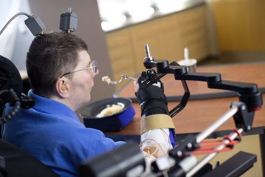 La revue médicale « The Lancet » présente ce dispositif innovant qui utilise directement la pensée pour déplacer le bras et la main pour effectuer des mouvements fonctionnels. En savoir plus sur