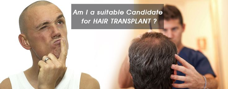 Hair transplantation is an elective procedure. However, regardless of a desire to have surgery, patients should meet a number of basic criteria that will determine if they are indeed surgical candidates.