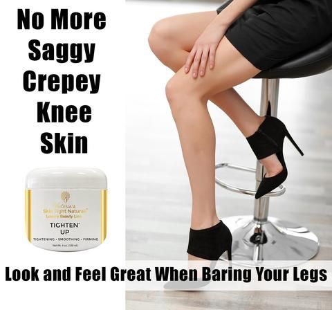 If you have lost a lot of weight, at least 25 pounds or more, especially quickly, most likely you have crepey skin somewhere on your body. One reason it is sensible to lose weight slowly is it gives your skin time to retract.  https://victoriasbodyshoppe.com/blogs/news/luscious-new-silky-cream-tightens-creepy-skin
