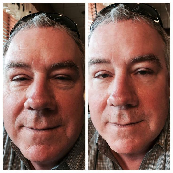 #instantlyageless #before #after #photo #men #want #antiaging #skin #care #too