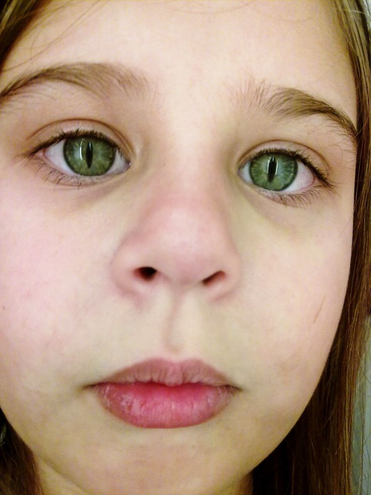 Schmid-Fraccaro-Syndrom - cat eye syndrome