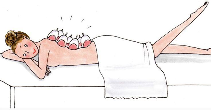 Jennifer Aniston et Gwyneth Paltrow appellent leur nouveau dada la Cupping Therapy, mais nous on a décidé de rester sur son petit nom d'origine : le massage aux ventouses chinoises.