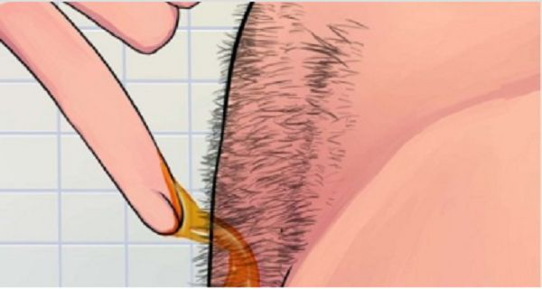 INDRUKWEKKEND! Hoe je op natuurlijke wijze lichaamshaar permanent kan verwijderen(Zonder Waxen of scheren) | Dagelijks.nu