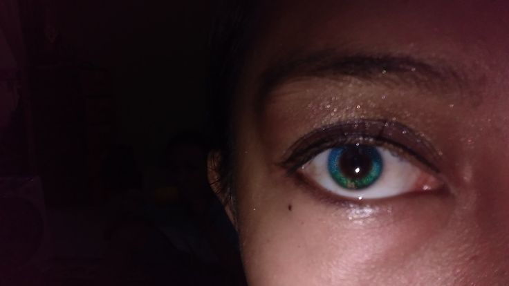 Space in my eye