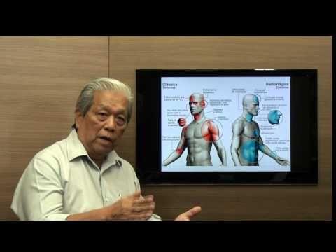 Tratamento de Dengue Clássica e Hemorrágica.