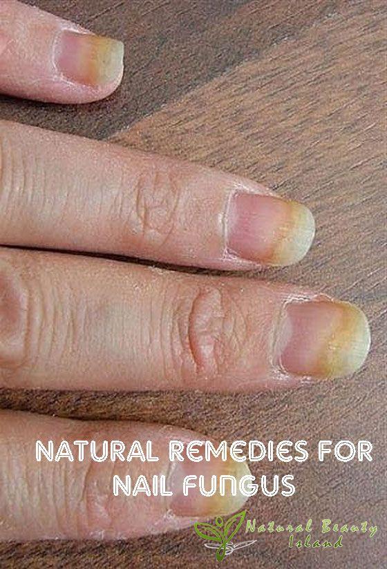 Natural Remedies for Nail Fungus   Beauty Island   Nails & Hands ...