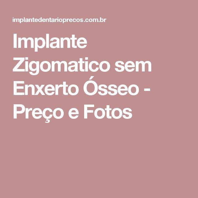Implante Zigomatico sem Enxerto Ósseo - Preço e Fotos