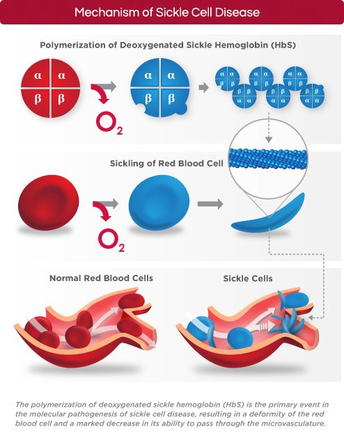 the clinical description of sickle cell anemia Definition/description sickle cell anemia is a genetic disorder characterized by irregularly shaped red blood cells due to an abnormal form of hemoglobin within the rbc's.