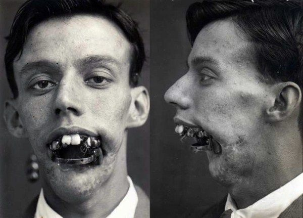 Reconstruction phases of a Willie Vicarage's jaw after a bullet hit in 1921.Considering the date, that is damned impressive.... Antibiotics had not yet been invented, meaning it was very hard to graft tissue from one part of the body to another because infection often developed. Traditionally, the edges of facial wounds were simply stitched together, but when scar tissue contracted faces were left twisted and disfigured.Harold Gillies, known as the father of modern plastic surgery,did...