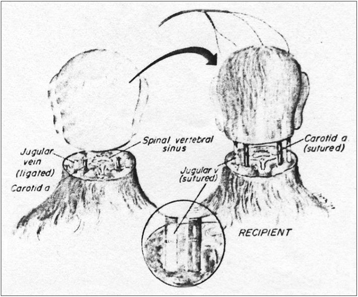 Illustration of the first-ever head transplant in a monkey.
