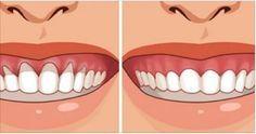 Retração gengival é um problema que atinge até as bocas mais saudáveis.Ela se desenvolve aos poucos e pode ser causada por alguns fatores, além do avanço da idade, como:- Escovação com muita força- Pouca escovação