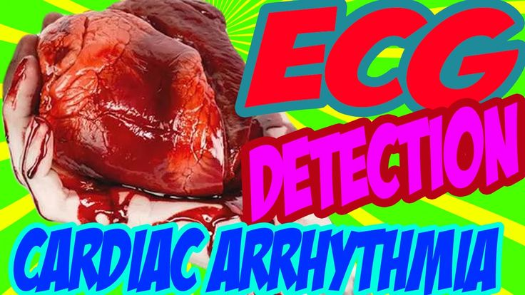 ♔♚♕ Arrhythmia of the Heart Terms, Definition & ECG Detection ♔♚♕  NCLEX Rn LVN PN Review - YouTube