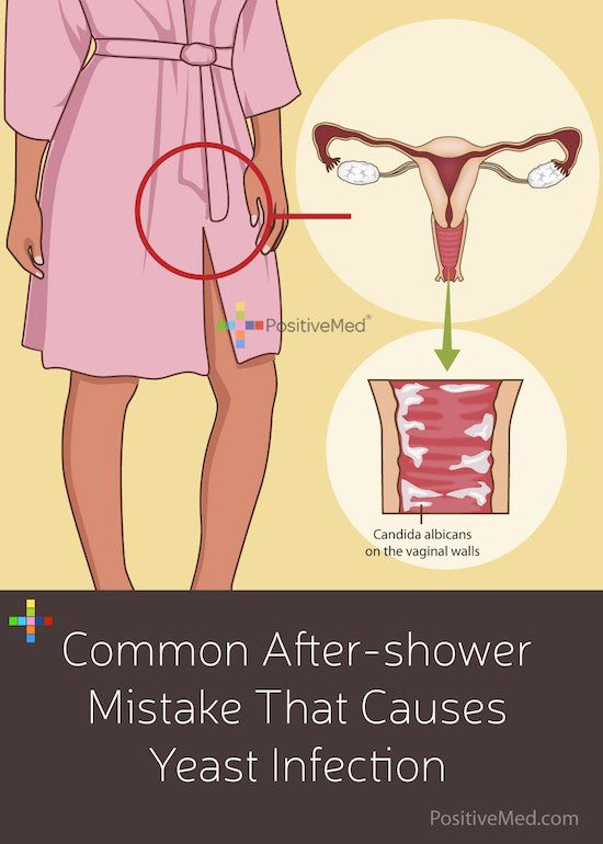 You're done with your shower. You step out, wipe off the water, reach for your clothes, and - wait! You're about to make a mistake that might leave you with a nasty, itchy v@ginal yeast infection. The key to avoiding this mistake is knowing what factors cause a yeast infection.