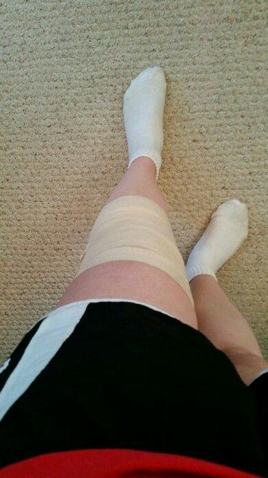 Knee: