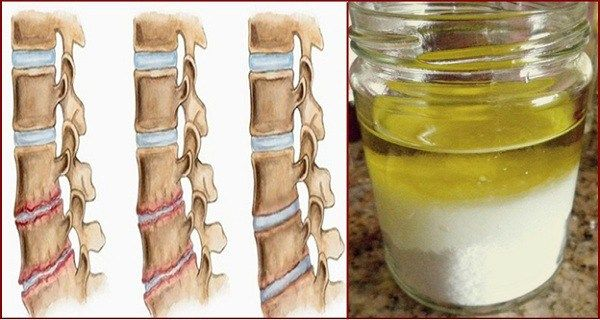 This incredible natural remedy is known to relieve the pain of osteoporosis immediately, and after using it you won't feel pain in a long term. This mixture is for massage and it is prepared with unrefined vegetable oil and salt (sea salt can also be used) Ingredients 10 tablespoons of salt 20 tablespoons of oil Instructions In a glass bottle add the oil, then the salt. Close it well. After 3-4 days you will get a light mixture. Consuming Rub the problematic area every morning with a…